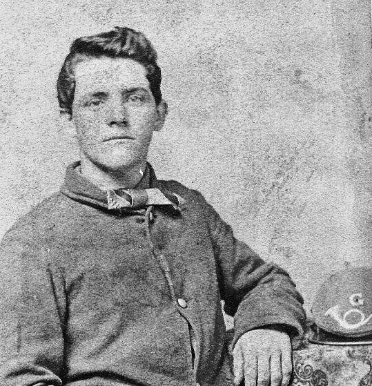 Thomas Burns of the 52nd Ohio Infantry